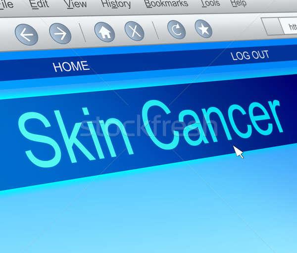 Huidkanker illustratie computerscherm vangen medische grafische Stockfoto © 72soul