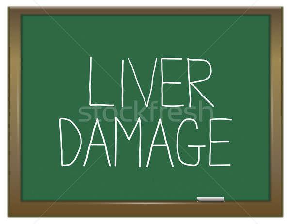 Fegato danni illustrazione verde lavagna salute Foto d'archivio © 72soul