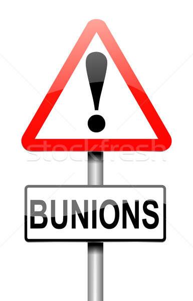 Bunions concept. Stock photo © 72soul