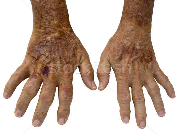 Elderly Male hands with Rheumatoid Arthritis and and spots Stock photo © 808isgreat