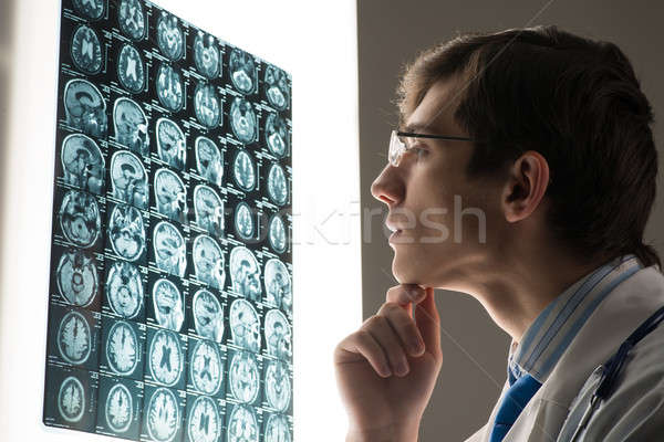 Stock photo: male doctor looking at the x-ray image