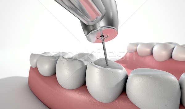 Foto d'archivio: Dentisti · trapano · denti · primo · piano · acciaio