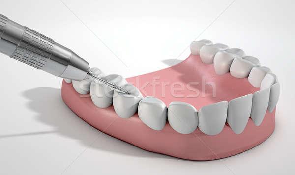 Tandartsen boor tanden staal Stockfoto © albund
