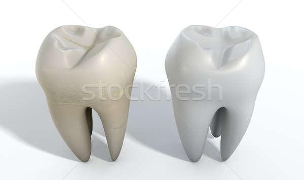 Sucia limpio diente comparación manchado blanco Foto stock © albund