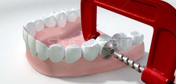 Mal di denti dente rosso metal isolato Foto d'archivio © albund