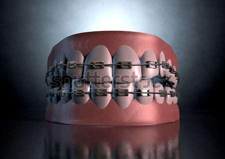 Golden Gangster Teeth And Gums Stock photo © albund