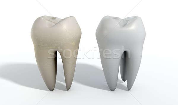 Dirty Clean Tooth Comparison Stock photo © albund