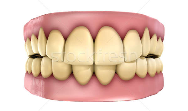 Teeth Set Yellow Isolated Stock photo © albund