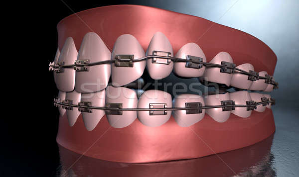 Creepy Teeth With Braces Stock photo © albund