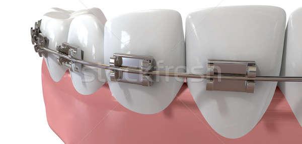 人間 歯 極端な クローズアップ 金属 ブレース ストックフォト © albund