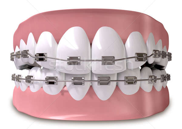 Teeth Fitted With Braces Close Stock photo © albund
