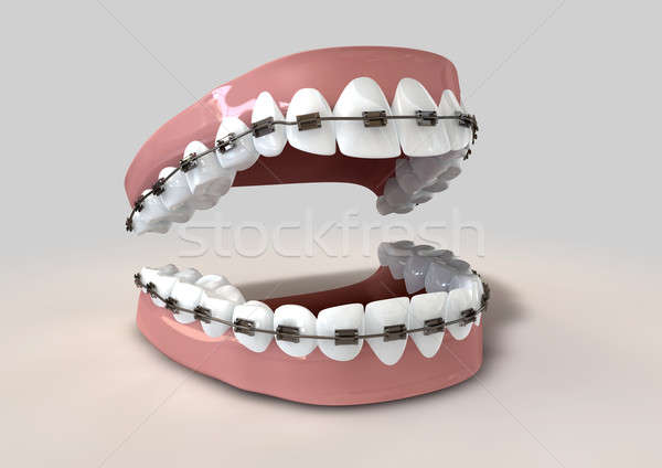Denti bretelle set umani metal dentista Foto d'archivio © albund