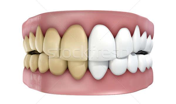 Teeth Set Isolated Stock photo © albund