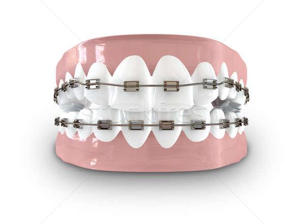 Tanden bretels gesloten ingesteld menselijke metaal Stockfoto © albund