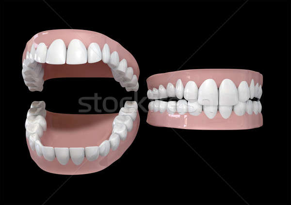 Teeth And Gums Open and Closed Stock photo © albund