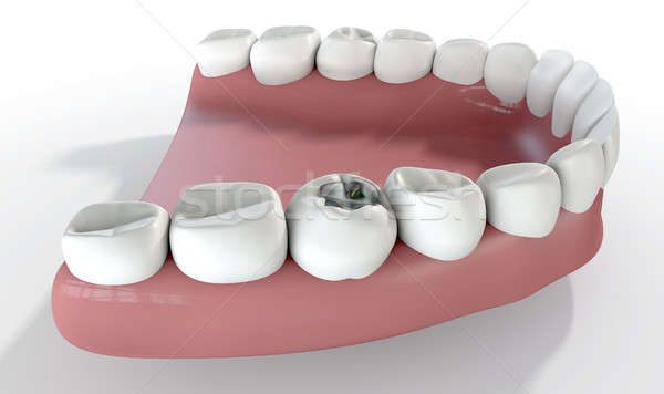 Teeth With Lead Filling Stock photo © albund