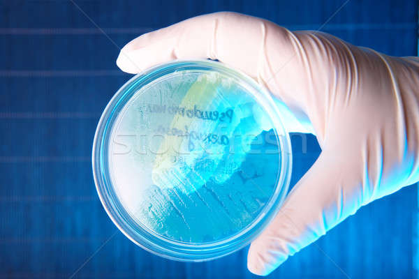 Stock photo: Pathological bacteria