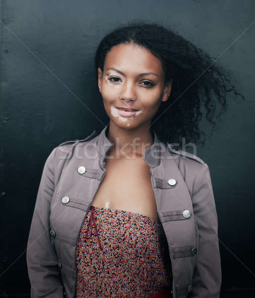 beautiful young brunette woman with vitiligo disease Stock photo © andreonegin