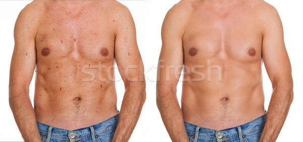 Man Showing Result Of Skin Treatment Stock photo © AndreyPopov