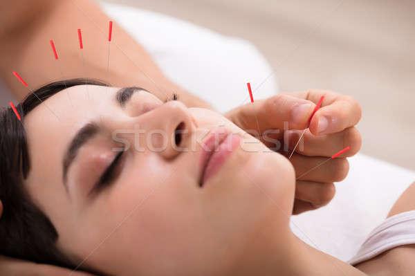 Foto stock: Mujer · hermosa · acupuntura · tratamiento · hermosa