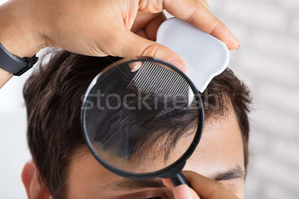 Dermatologist Checking Patient's Hair With Magnifying Glass Stock photo © AndreyPopov