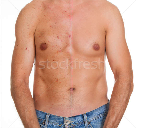 Close-up Of Man Showing Result Of Skin Treatment Stock photo © AndreyPopov
