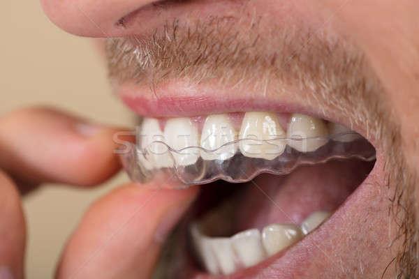 Man Putting Transparent Aligner In Teeth Stock photo © AndreyPopov