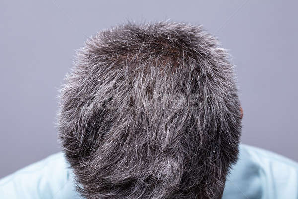 Dandruff On Man's Hair Stock photo © AndreyPopov