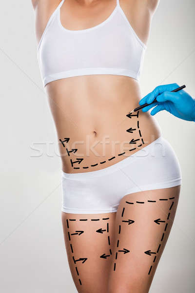 Person Hand Drawing Lines On Woman's Abdomen And Leg Stock photo © AndreyPopov