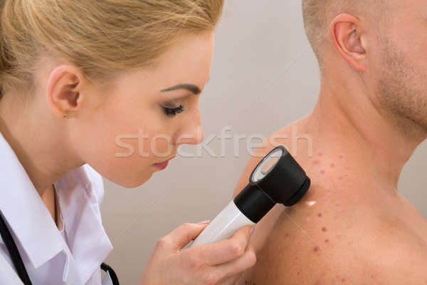 Doctor Examining Pigmented Skin Stock photo © AndreyPopov