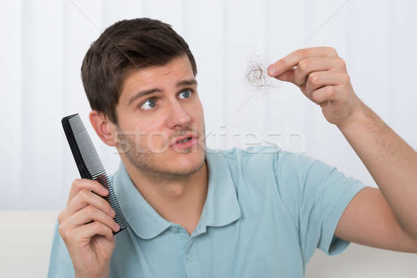 Man Suffering From Hair Loss Stock photo © AndreyPopov