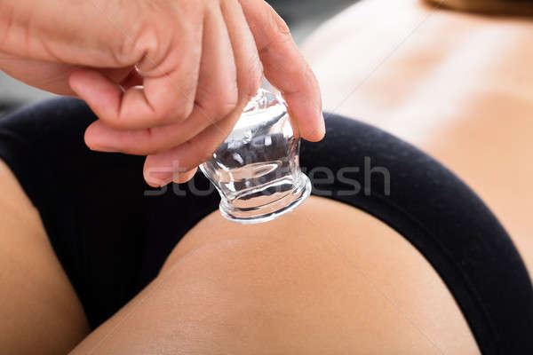 Close-up Of A Therapist Using Cup For Cupping Therapy Stock photo © AndreyPopov