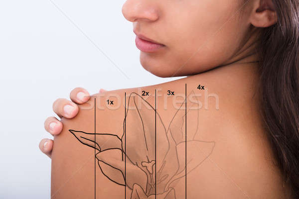 Tattoo Removal On Woman's Shoulder Stock photo © AndreyPopov