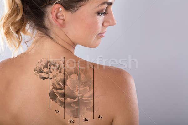 Laser tattoo rimozione spalla grigio donna Foto d'archivio © AndreyPopov