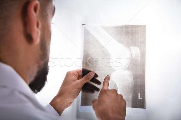 Stock fotó: Orvos · megvizsgál · térd · röntgen · közelkép · fiatal