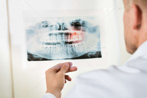 Doctor Looking At X-ray Stock photo © AndreyPopov