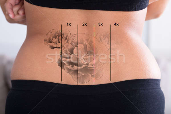 Tattoo Removal On Woman's Hip Stock photo © AndreyPopov