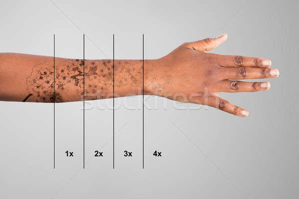 Lézer tetoválás eltávolítás kéz szürke divat Stock fotó © AndreyPopov