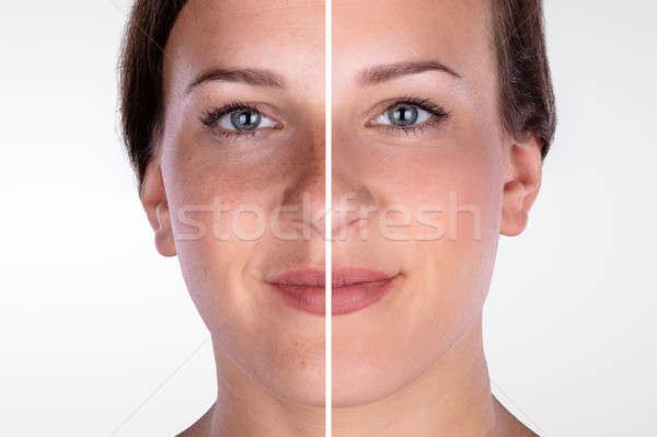Arc kozmetikai eljárás közelkép fiatal háttér Stock fotó © AndreyPopov