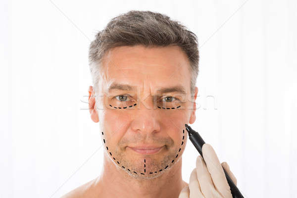 Surgeon Drawing Correction Lines On Man Face Stock photo © AndreyPopov