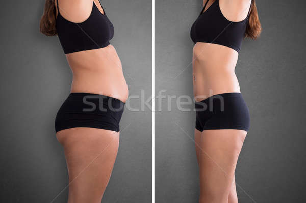 Woman Before And After Weight Loss Stock photo © AndreyPopov