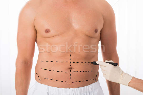 Person Hands Drawing Perforation Lines On Stomach Stock photo © AndreyPopov