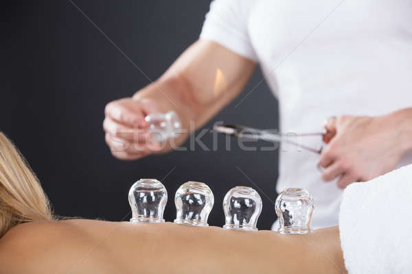 Woman Receiving Cupping Treatment On Back Stock photo © AndreyPopov