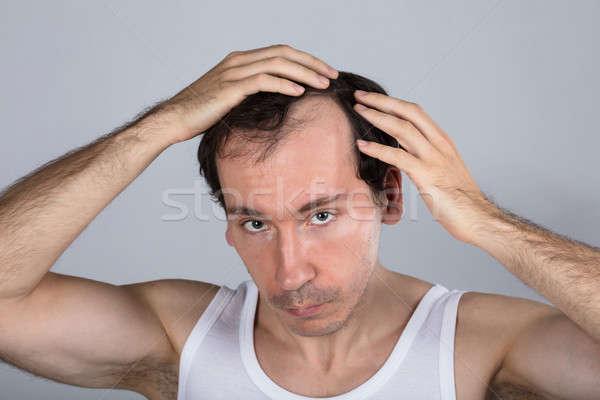 Hombre sufrimiento pelo pérdida gris mano Foto stock © AndreyPopov