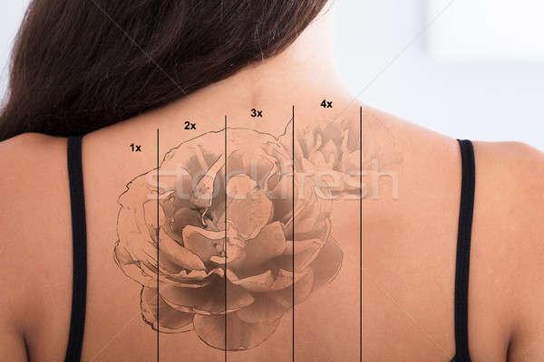 Laser tattoo verwijdering Maakt een reservekopie witte Stockfoto © AndreyPopov