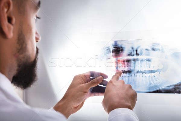 Stock fotó: Fogorvos · megvizsgál · fogak · röntgen · közelkép · fogorvosok