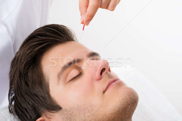 Stock photo: Man Receiving Acupuncture Treatment