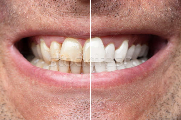 Man Teeth Before And After Whitening Stock photo © AndreyPopov