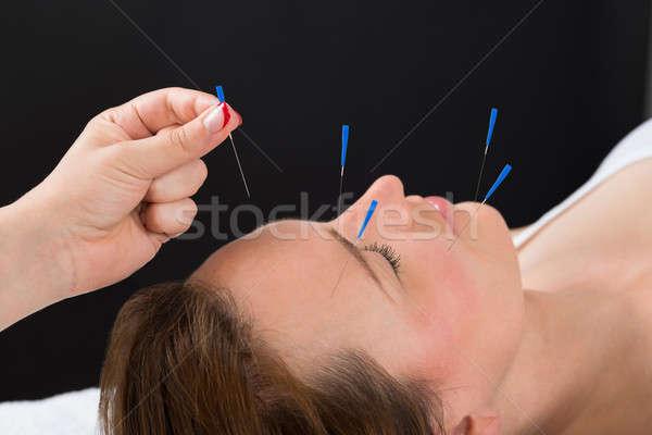 Kişi akupunktur iğne yüz kadın Stok fotoğraf © AndreyPopov