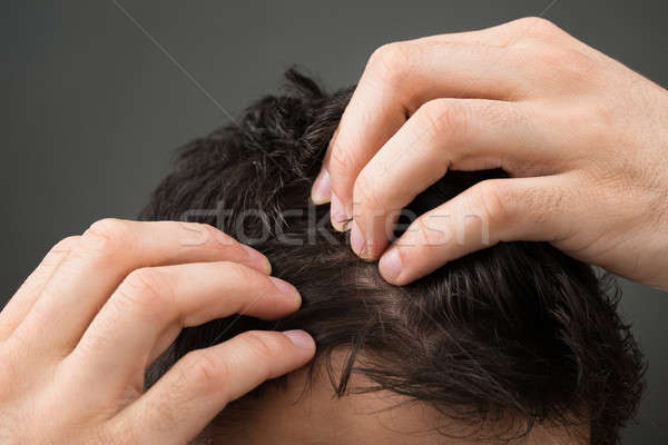 Cropped Image Of Man Suffering From Hair Loss Stock photo © AndreyPopov